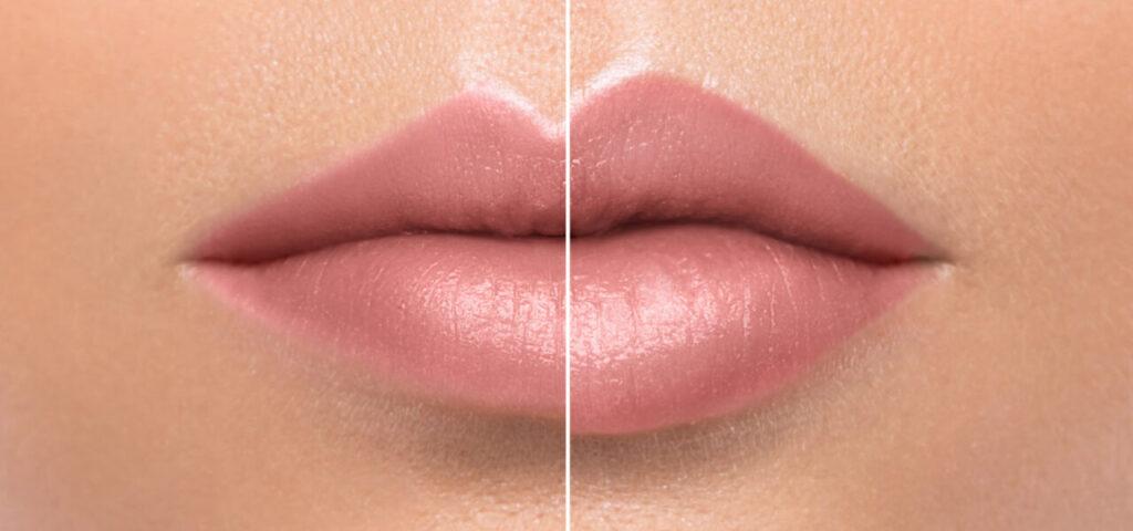 powiększanie ust efekt przedipozabiegu