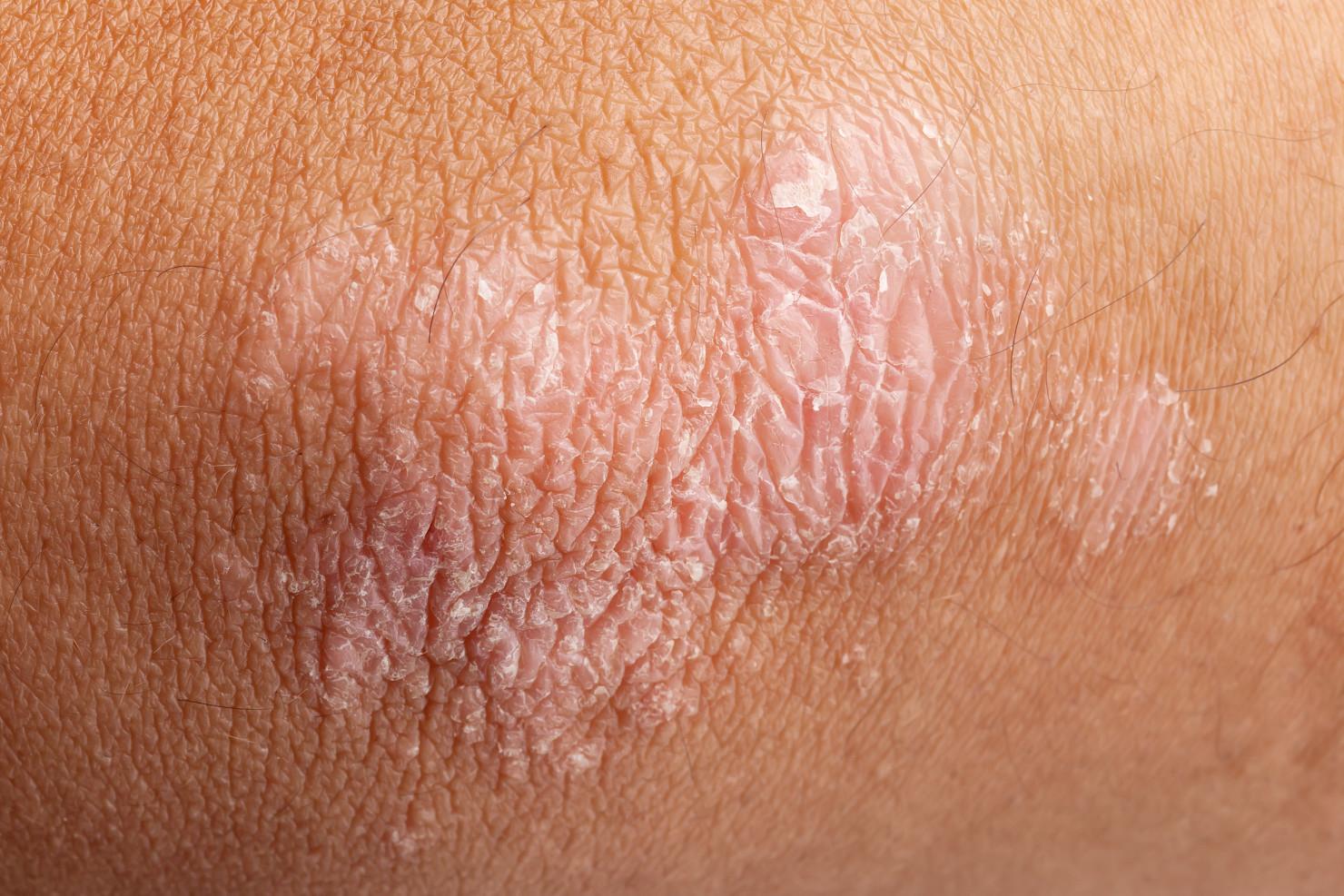 łuszczyca skóry łokcia