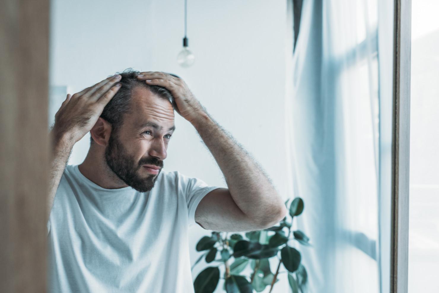 Łysienie – przyczyny ileczenie łysienia ukobiet imężczyzn