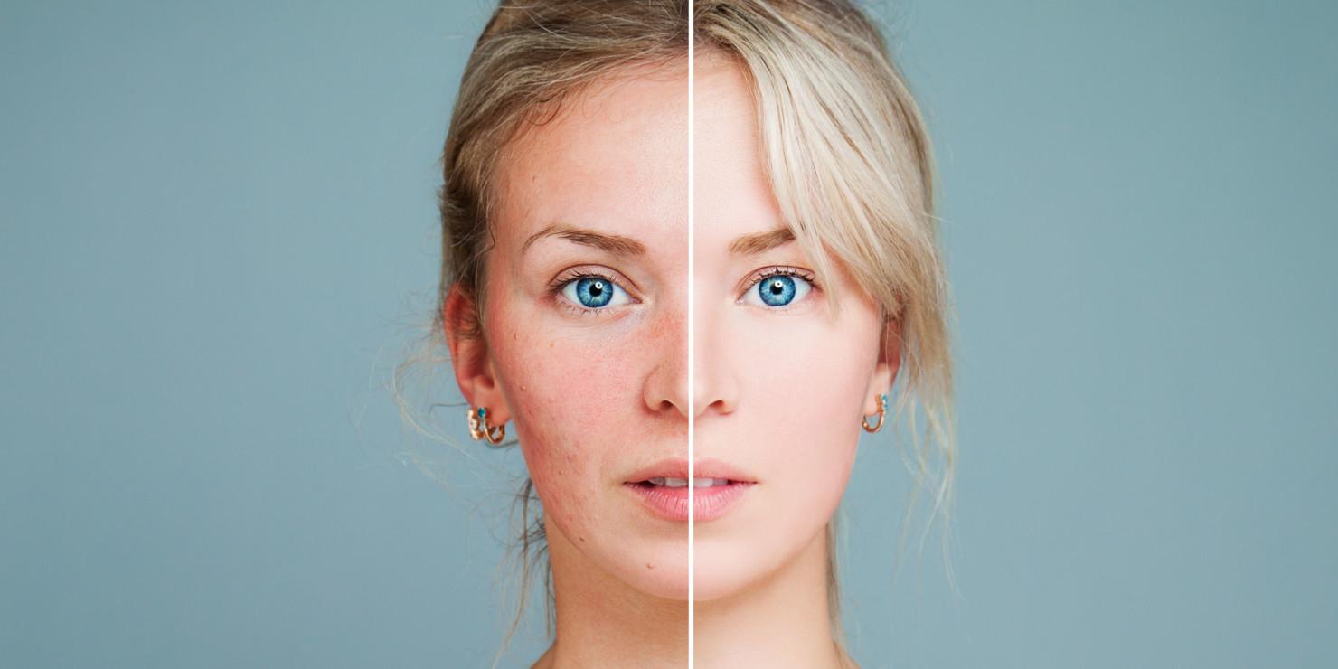 Trądzik różowaty – przyczyny, objawy, leczenie