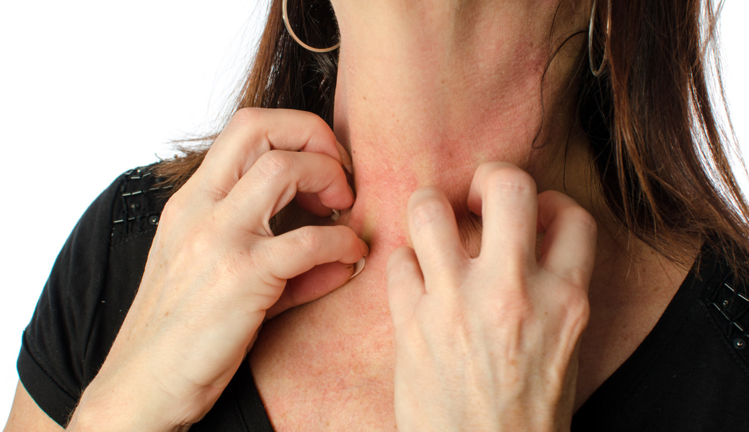 alergiczne choroby skóry