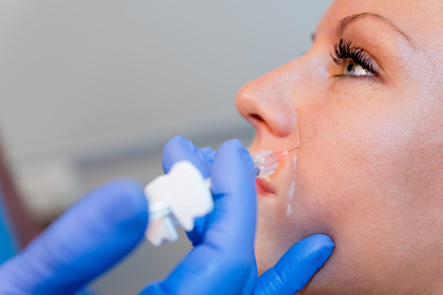 modelowanie twarzy kwasem hialuronowym