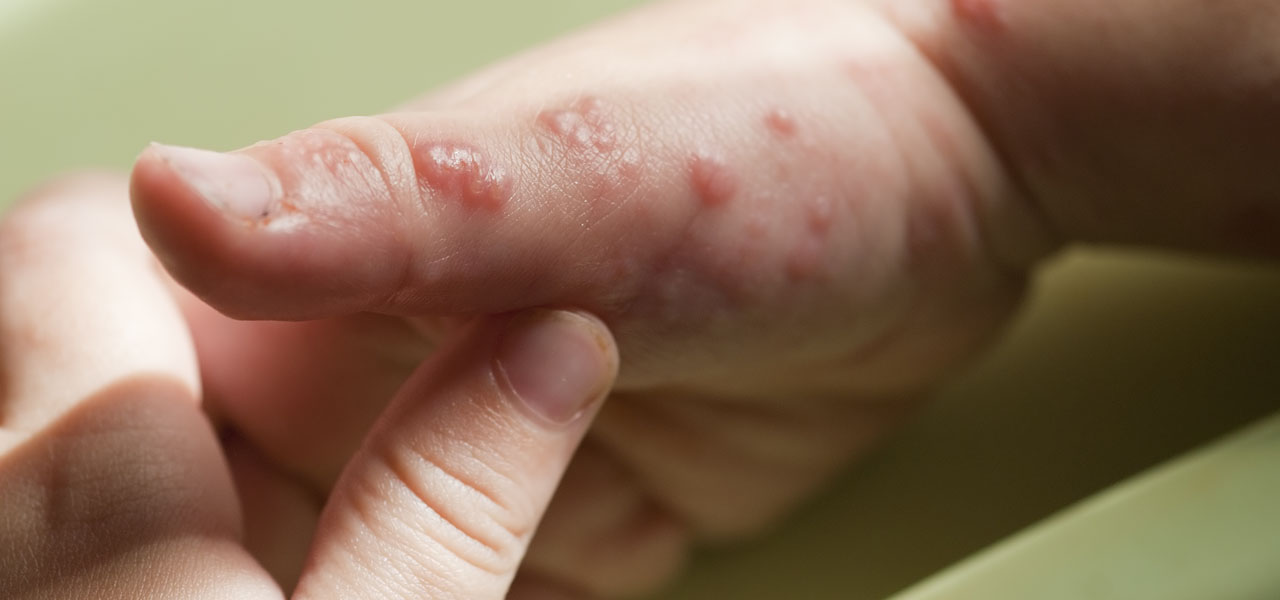 Choroby infekcyjne skóry - półpasiec w dloni dziecka