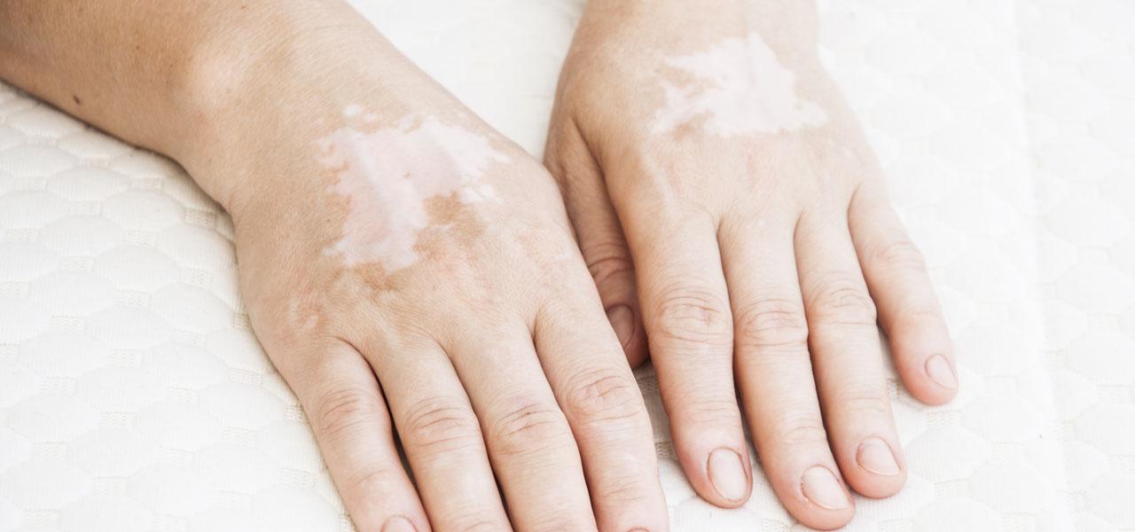 Bielactwo (albinizm) – przyczyny, objawy ijak leczyć.