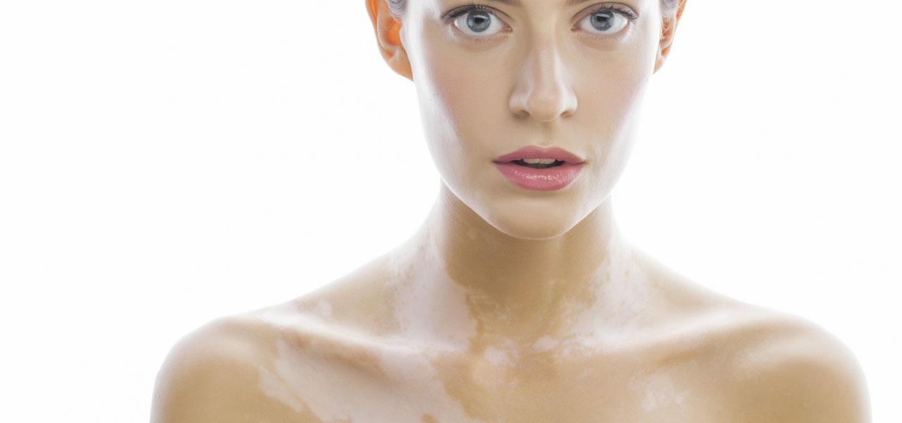bielactwo (albinizm) ukobiet nacałym ciele