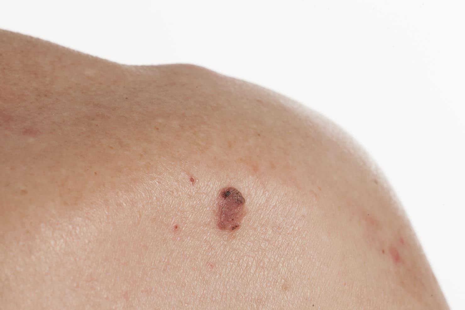 rak podstawnokomórkowy basal cell carcinoma