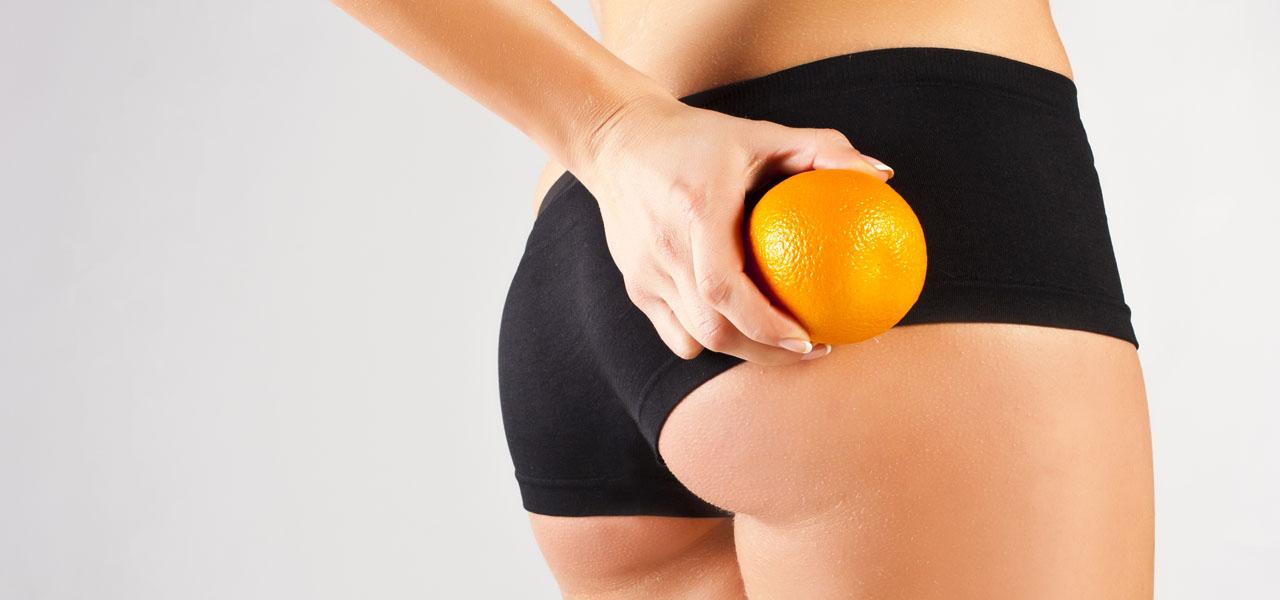 """Cellulit – powiedz """"stop"""" pomarańczowej skórce"""