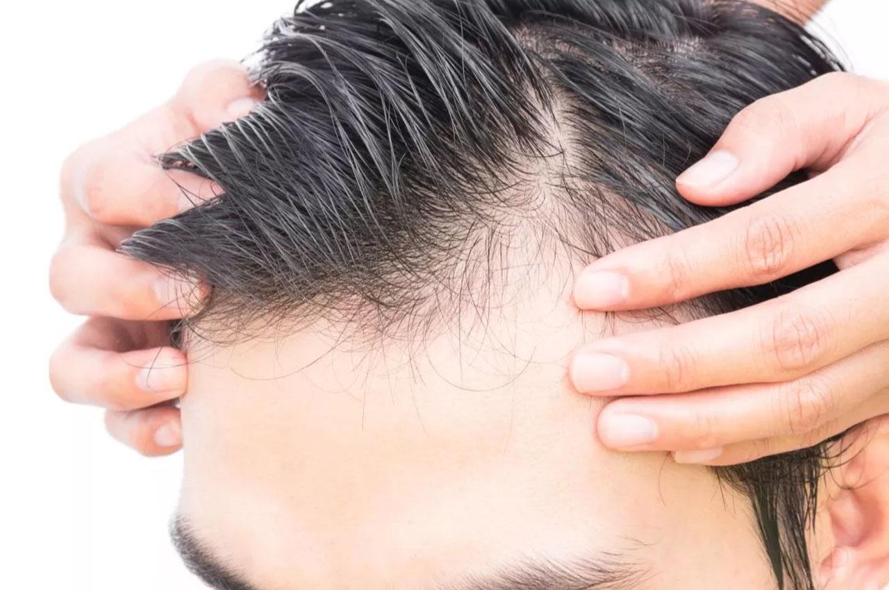 Leczenie łysienia laserem