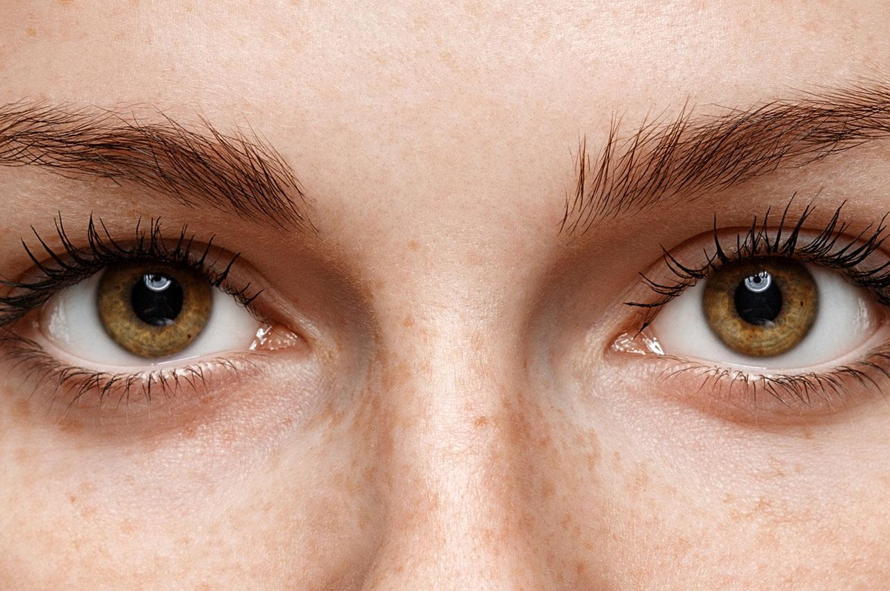 Poprawa wyglądu okolicy oka z zastosowaniem fibryny