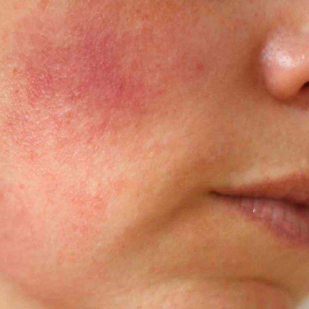 czerwone plamy naskórze twarzy
