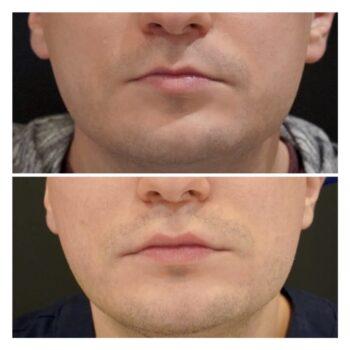Kwas hialuronowy modelowanie ust