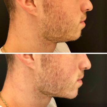 kwas hialuronowy broda 2