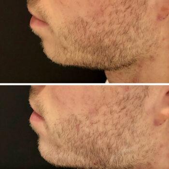 kwas hialuronowy broda