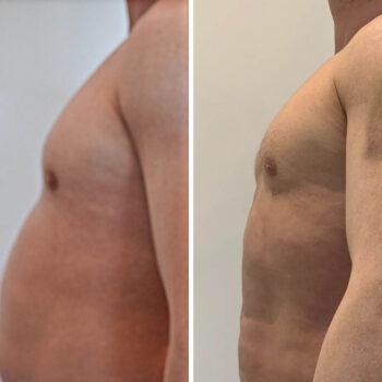 liposukcja 1