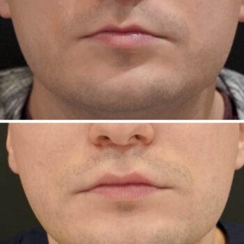 modelowanie ust umężczyzn kwasem hialuronowym