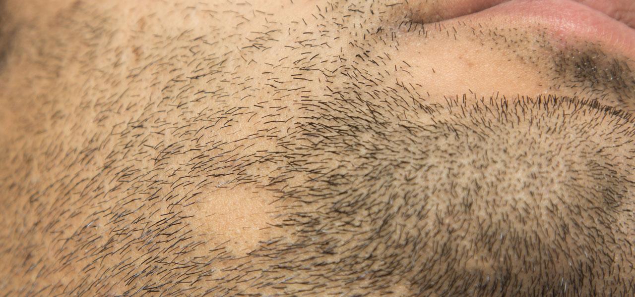 łysienie plackowate nabrodzie