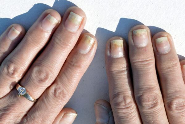 onycholiza plytka paznokcia