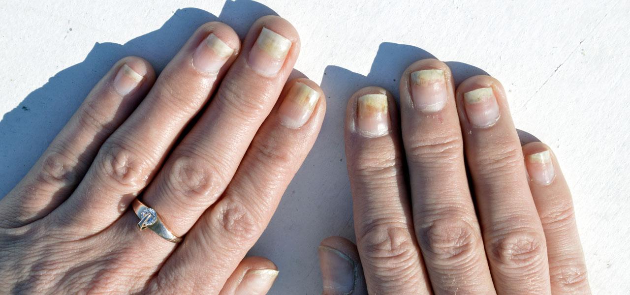 Onycholiza – czym jest? objawy, leczenie onycholizy