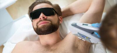 depilacja laserem u mezczyzny