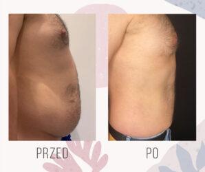 vaser lipo liposukcja brzucha